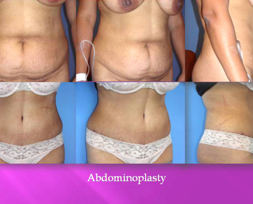Tummy Tuck in Los Angeles