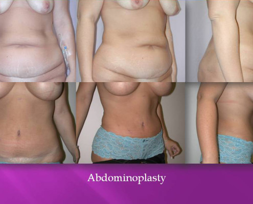 Abdominoplasty by Dr. Charles Kim