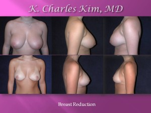 Breast Reduction1