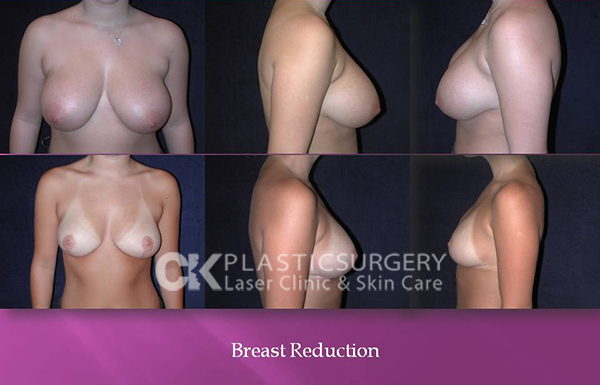 Breast Reduction in Los Angeles