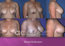 Breast Reduction in CA