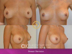 Breast Revision3