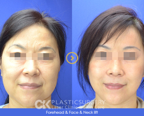 Face and Neck Lift LA