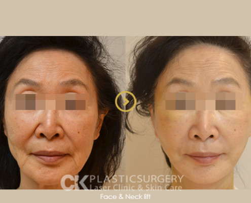Facelift Costa Mesa