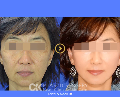 Non-Surgical Facelift Costa Mesa