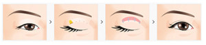Incision Ptosis Correction