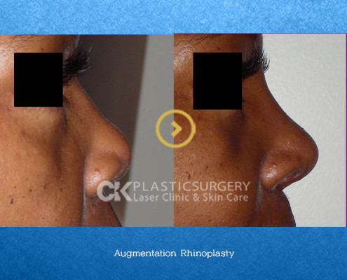 Nose Correction Costa Mesa