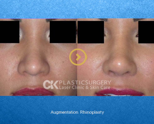 Nose Augmentation Surgery