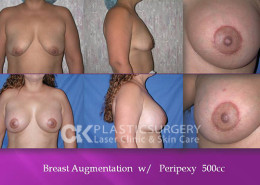 Breast Surgery Orange County