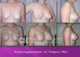 Breast Lift in Beverly Hills, CA