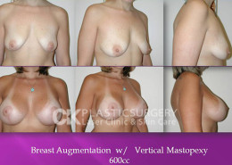 Breastlift Surgery In CA