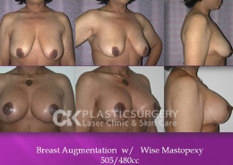 Breastlift in Beverly Hills