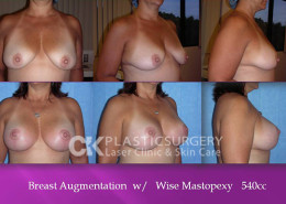 Wise Mastopexy Los Angeles