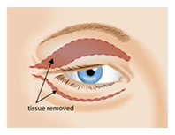 Eyelid Surgery by Incisional Method