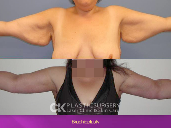 Brachioplasty In Los Angeles