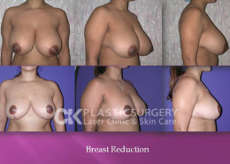 Breast Reduction in Costa Mesa