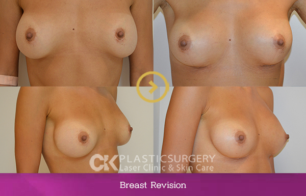 Breast Implant Revision Los Angeles
