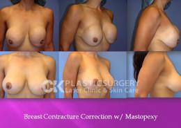 Breast Revision Surgery Costa Mesa