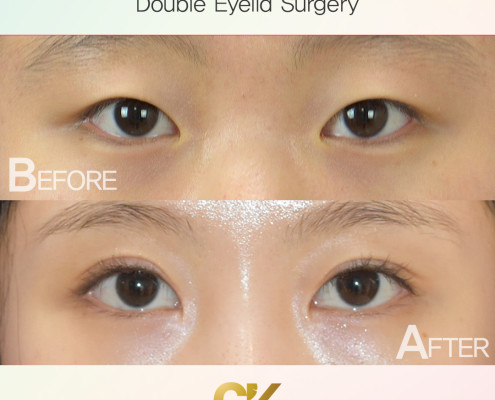 Double Eyelid Surgery in LA