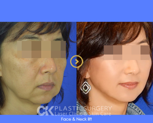 Non-Surgical Facelift Los Angeles
