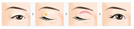 Blepharoplasty Los Angeles