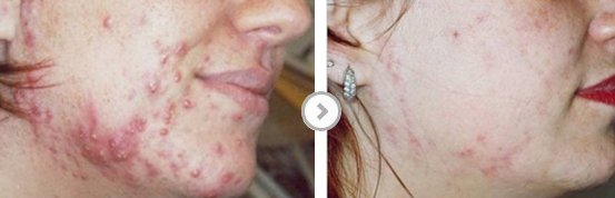 Before and After Active Acne