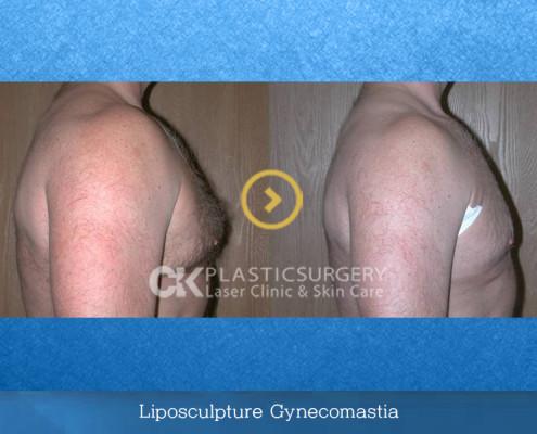 Liposculpture Gynecomastia Specialist