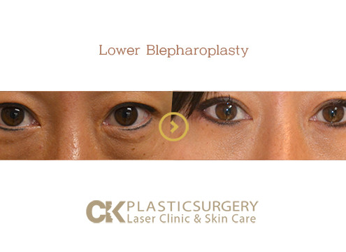 Lower Blepharoplasty Costa Mesa