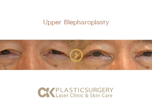 Upper Blepharoplasty Los Angeles
