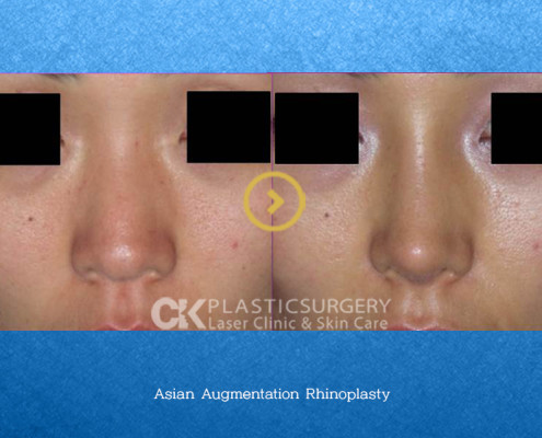Rhinoplasty Costa Mesa