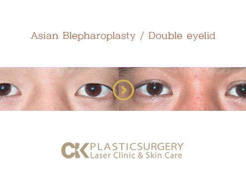 Eyelid Surgery Costa Mesa