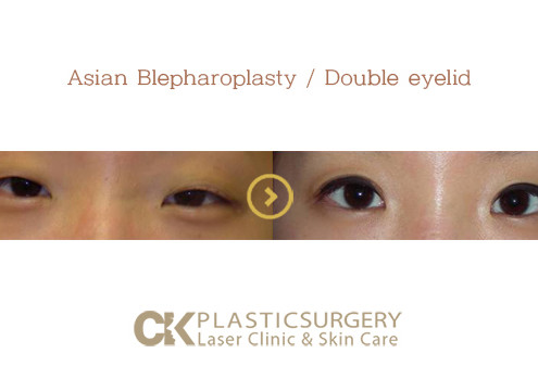 Asian Eyelid Surgeon