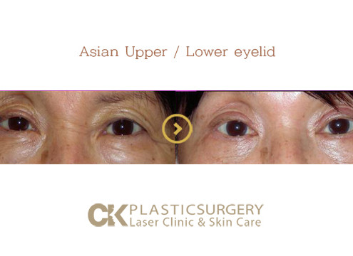 Lower Eyelid Surgery LA
