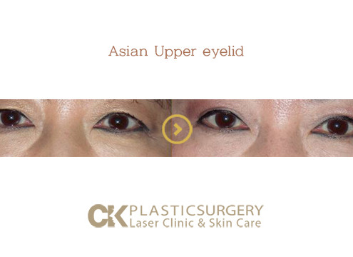 Asian Upper Eyelid Surgery