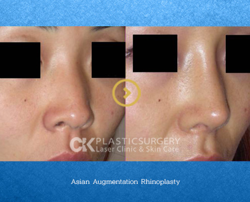 Rhinoplasty by Nose Type