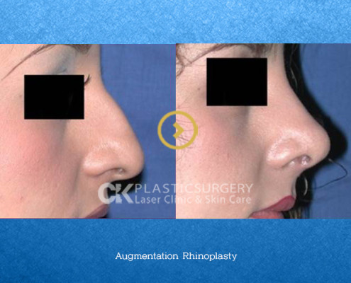 Augmentation Rhinoplasty CA