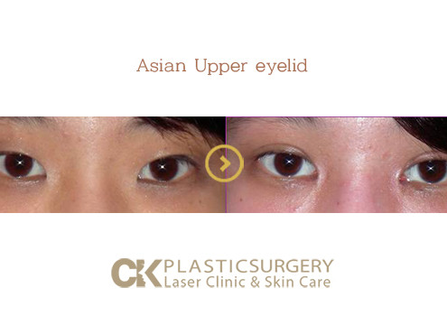 Asian Blepharoplasty Los Angeles