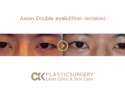 Non-incision