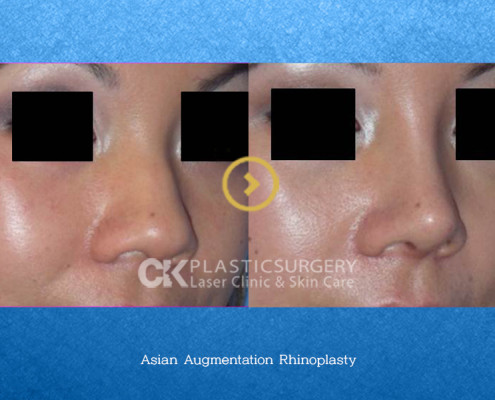 Asian Augmentation Nose Surgery