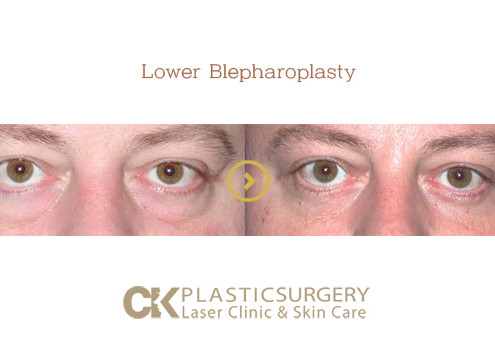 Best Blepharoplasty Orange County