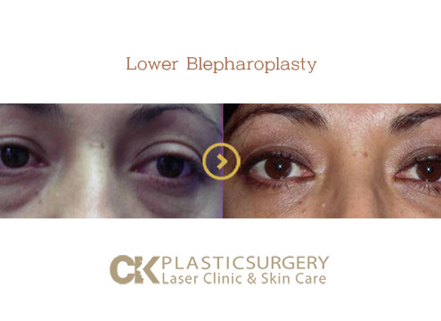 Lower Blepharoplasty Los Angeles