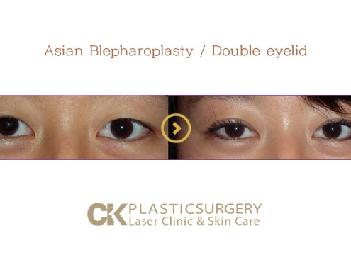 Double Eyelid Surgery Los Angeles