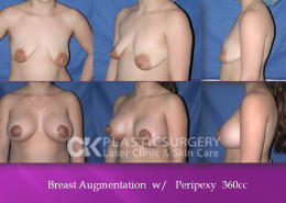 Breast Lift (Mastopexy) in CA