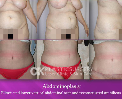 Abdominoplasty in Beverly Hills