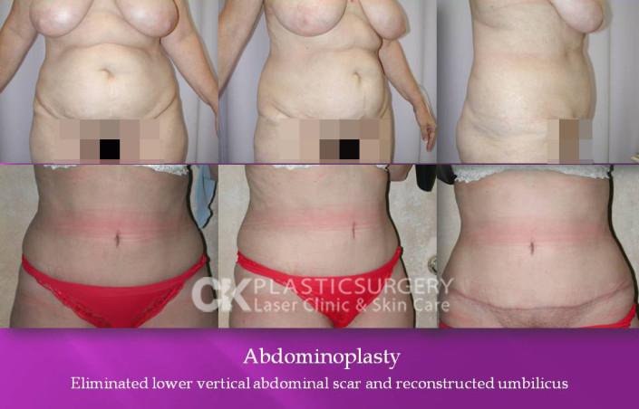 Abdominoplasty in Beverly Hills
