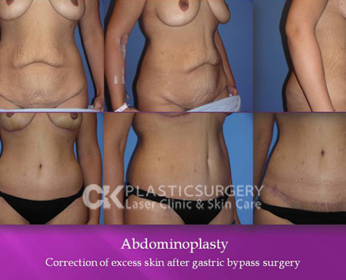 Tummy Tuck Surgery Los Angeles