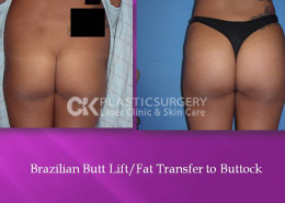 Buttock augmentation Los Angeles