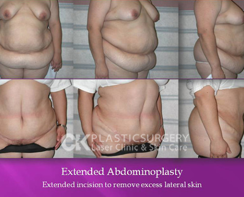 Tummy Tuck Surgery CA
