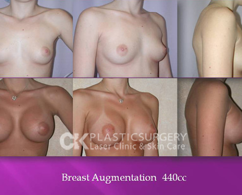 Breast Augmentation Los Angeles CA