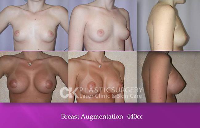 Breast Augmentation Los Angeles CA